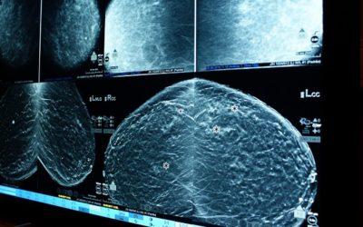 Até dezembro rastreios de cancro da mama em Mangualde